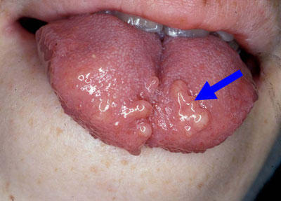 Bumps On Tongue Potential Causes And Efficient Home