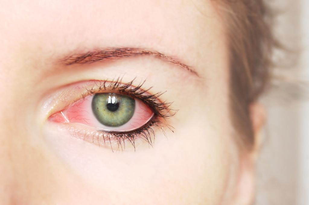 Photographs eyelid twitching remedies - borzii